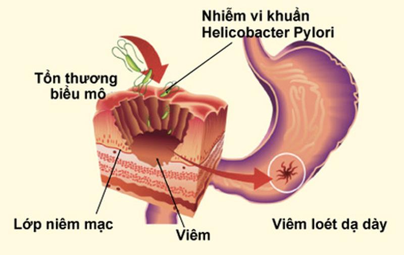 Viêm dạ dày mãn tính là gì